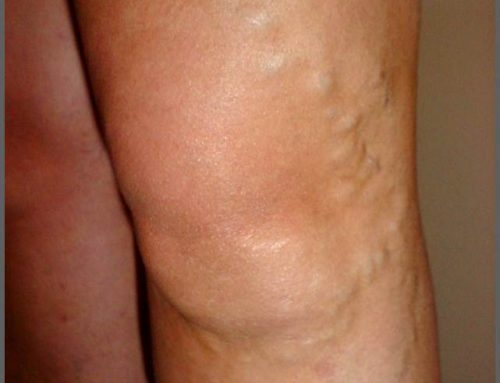 Varicose veins – the inside story